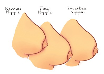 Inverted Nipple Breastfeeding Tips